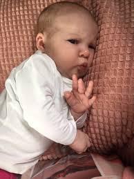 Hoe kan men koemelkallergie bij een baby testen?