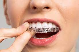 دلایل کج شدن دندان ها