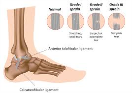 playing on a sprained ankle regene