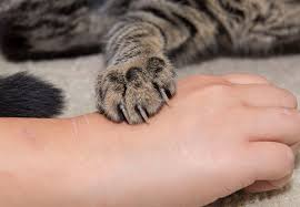 What You Should Do For A Cat Bite Or Scratch Health Essentials From Cleveland Clinic