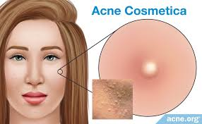 acne cosmetica