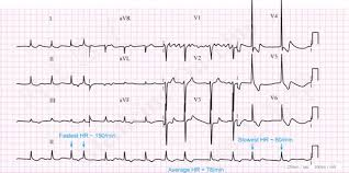 Ecg Chart Labeled Ecg A Pictorial Primer
