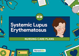 Sle Diet Chart 4 Systemic Lupus Erythematosus Nursing Care Plans Nurseslabs