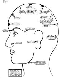 Different Types Of Headaches Chart 18 Prototypical Headache Charts