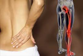 Back Pain and Backers