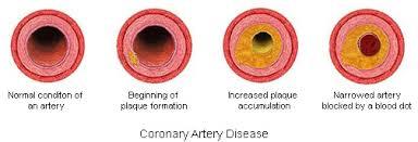 heart disease साठी इमेज परिणाम