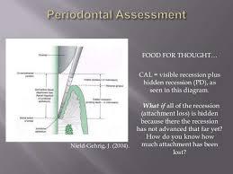 Perio Assessment