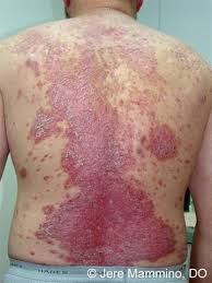 Psoriasis - American Osteopathic College of Dermatology (AOCD)