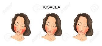 """Résultat de recherche d'images pour """"bouton d'acné rosacée dessin"""""""