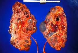 Kidney Patient Diet Chart In Telugu Polycystic Kidney Disease Wikipedia