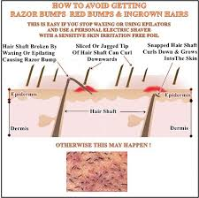 causes of ingrown hairs prevention is