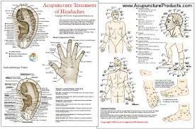 Acupuncture Treatment Of Headaches Chart