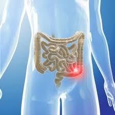 Darmkrebs : Anzeichen, Symptome und Früherkennung