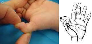 Resultado de imagen para dedo en resorte