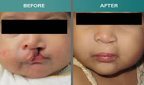 cleft lip repair lip correction in kerala cleft lip and palate repair kerala lips