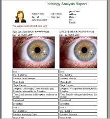 How To Read Eyes Iridology By Color Iridology Software