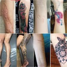 как избавится от шрама после тату