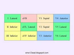 Stemi Leads Chart Here Are Some Charts To Help You Identify And Localize Acute