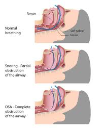 nasal obstruction symptoms causes
