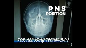 Pns Pns Water View Positioning Anatomy And Physiology Part 21