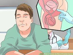 Masturbation avoid prostate cancer