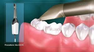 dental onlay inlays onlays bonding oakville dental care family dentist in