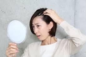 女性でもm字の生え際が薄くなる原因と対策を解説 薄毛対策室