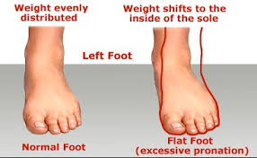 Flat Footed Flat Feet Therapies For Kids