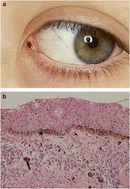lesions of the caruncle a description