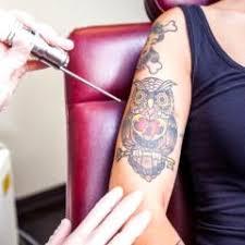 Enlèvement de tatouage par excision – L'excision vous convient-elle?