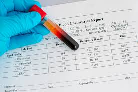 Cholesterol Levels Chart 2015 High Cholesterol Ups Risk Of Aggressive Prostate Cancer