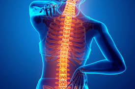 Image result for Ankylosing spondylitis Definition