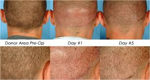neograft less hair transplant and restoration in michigan allure cal