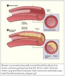 atherosclerosis linus pauling