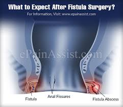 Recovery time from anal fistula surgery