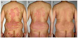 Marked Improvement Of Psoriasis During Treatment With Adalimumab A