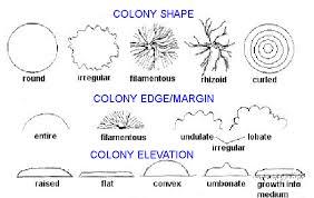 Petri Dish Bacteria Identification Chart 8 Bacterial Colony Morphology Biology Libretexts