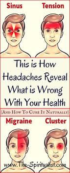 80 Best Headaches Chart Images In 2019 Headache Remedies
