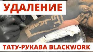 удаление тату рукава Blackwork процесс процедуры