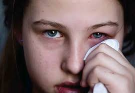 Allergic Conjunctivitis: Pharmacists on the Front Line