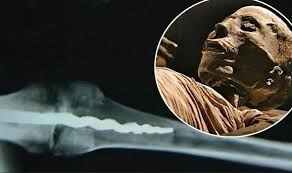Was surgery performed on Egyptians: Prosthetic pin in 3000-year-old mummy  discovered | Weird | News | Express.co.uk