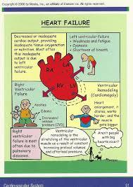 Right Vs Left Sided Heart Failure Chart Heart Failure Nursing Cardiac Nursing Med Surg Nursing