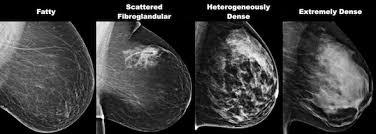 mammography screening ile ilgili görsel sonucu