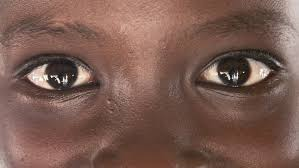 How Do Eyes React To Light The Eyes Protecting Sight Sightsavers