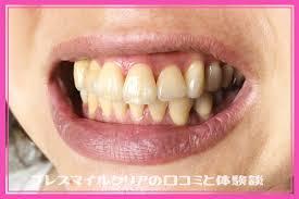 ブレス マイル クリア 口コミ 効果 | 歯磨き粉「ブレスマイルクリア」を徹底レビュー!歯のホワイトニング、歯周病、口臭の効果から口コミの評判まで
