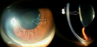 copper deposition in peripheral descemet membrane kayser fleischer ring and anterior capsule of crystalline lens sunflower cataract