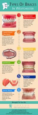 full size of teeth bleaching invisalign braces cost uk types of braces wonderful invisalign braces
