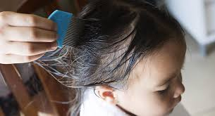 head lice 101 what lice look like how
