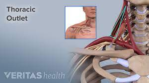 The majority of these nerves control the functions of the upper extremities and allow you to feel your arms, shoulder, and back of your head. Neck Pain From Thoracic Outlet Syndrome
