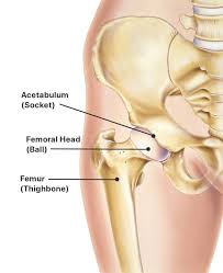 hip replacement procedure symptoms